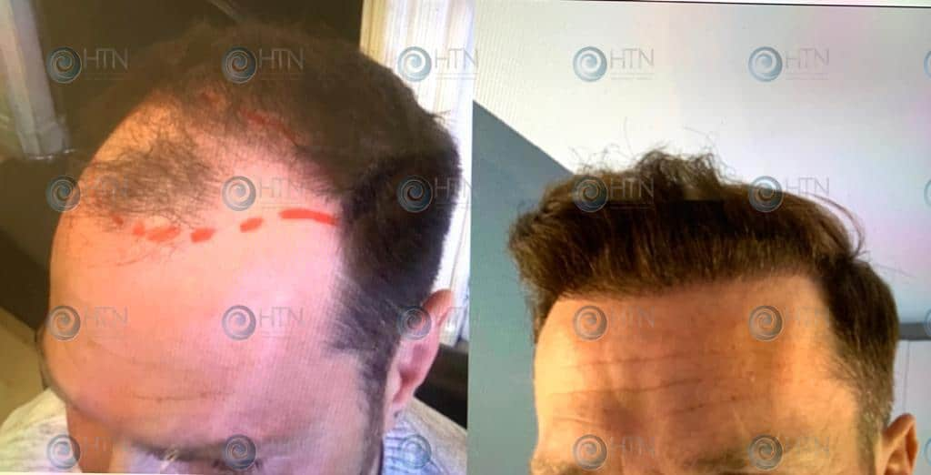 Hair Transplant Newcastle Clinic Client Before and after surgery