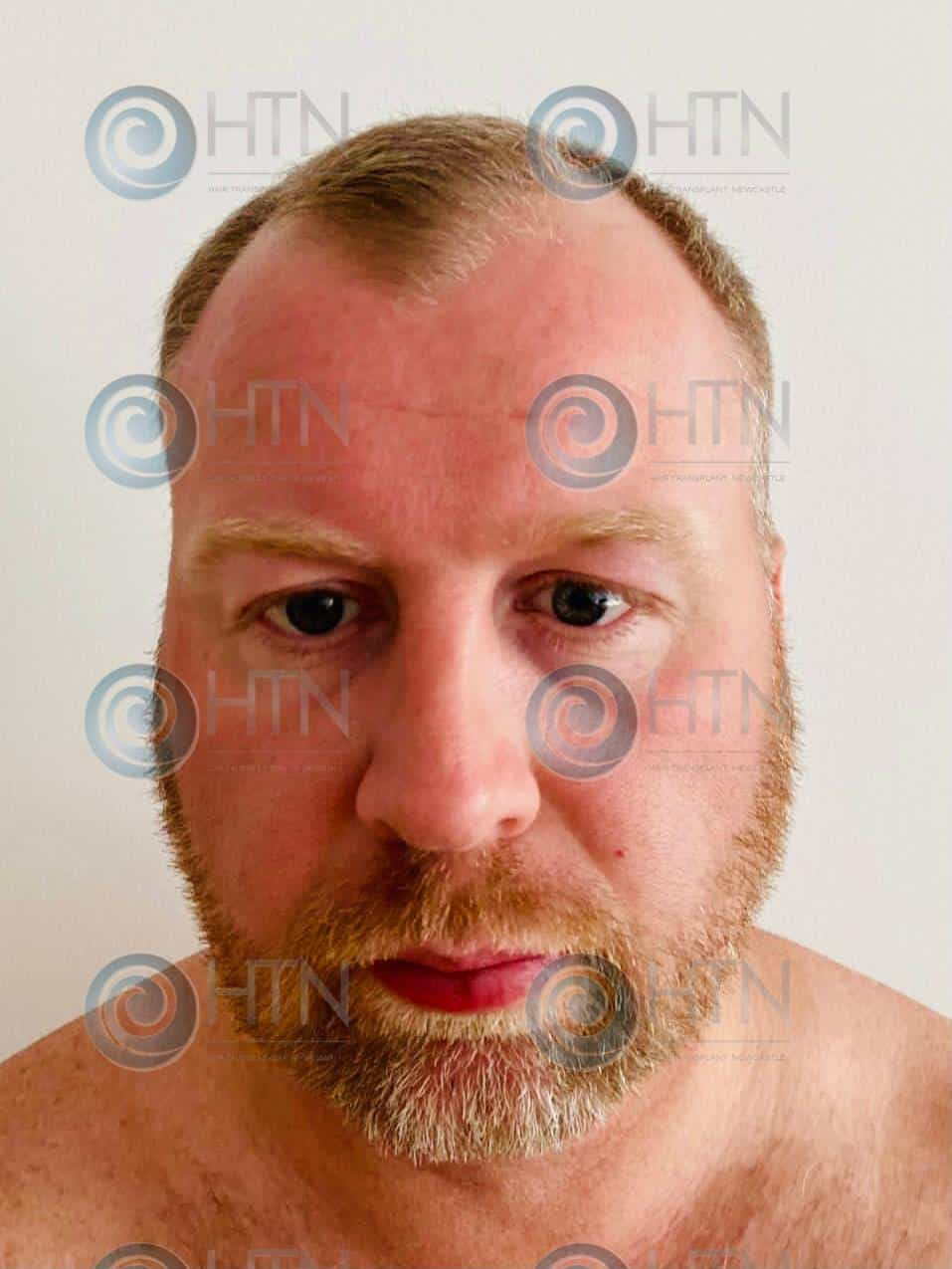 Hair Transplant Newcastle client before surgery